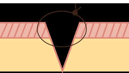 Illustration point dermique