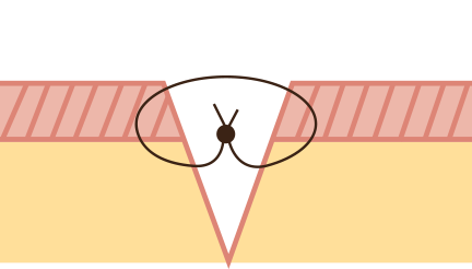 Illustration point intra